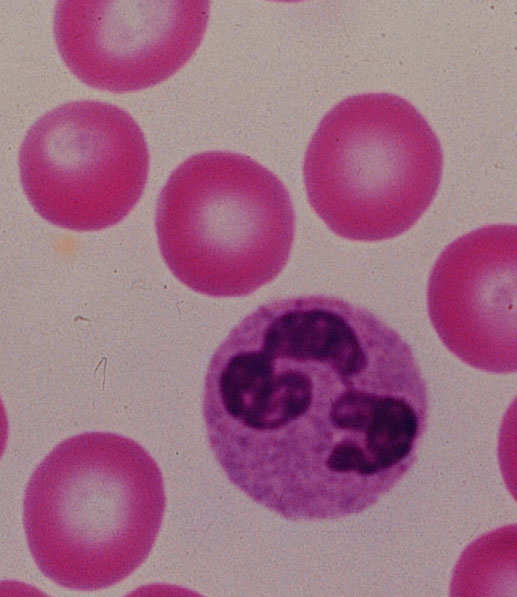 http://laboratoryscience.persiangig.com/Neutrophilk.JPG