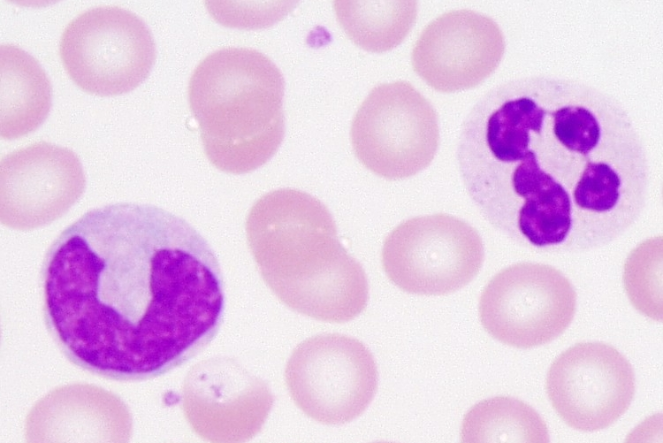 http://laboratoryscience.persiangig.com/monocyte_neutrophil-01a.jpg
